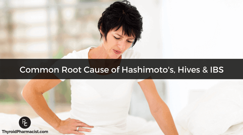 Root Cause of Hashimoto's, Hives & IBS