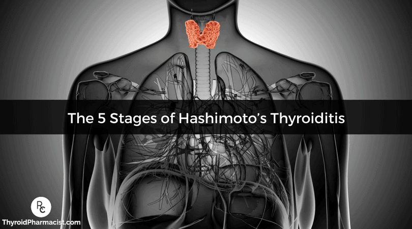 The 5 Stages of Hashimoto's Thyroiditis